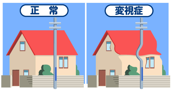日本アルコン-目の病気について-サンプル画像03